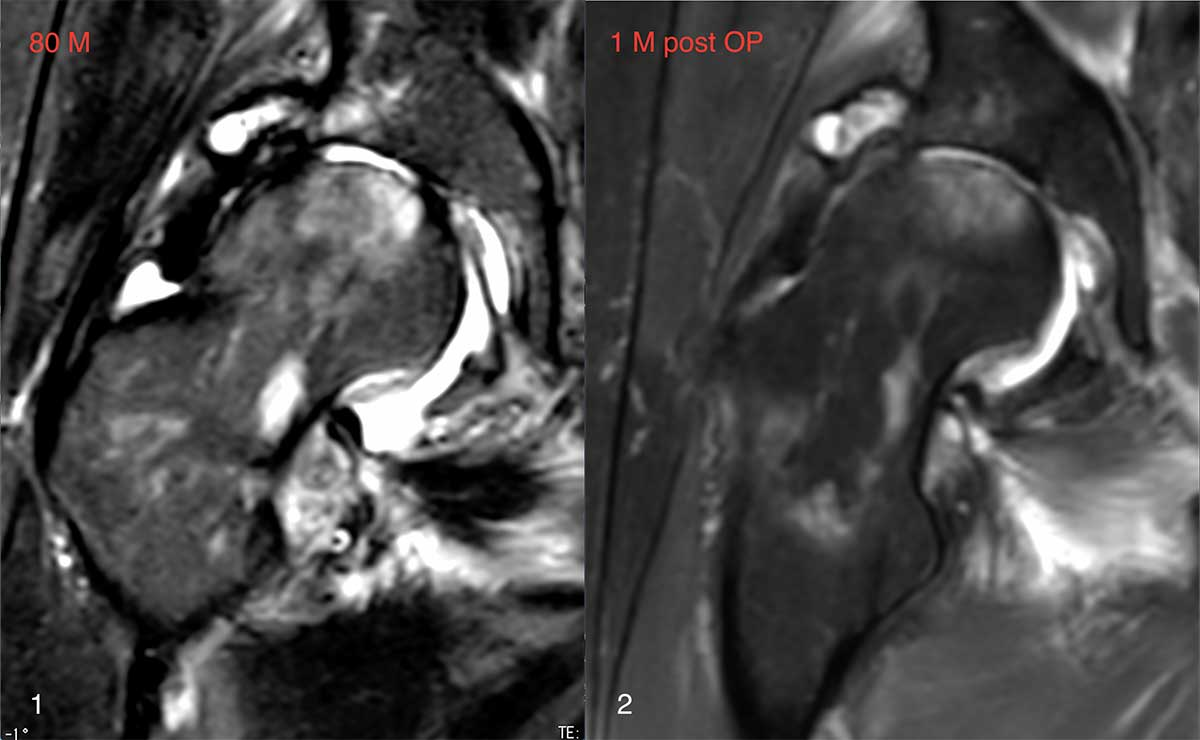 Fall_1.HAON.19.20.21.22.23_Hüftgelenkarthrose-und-Osteonekrose