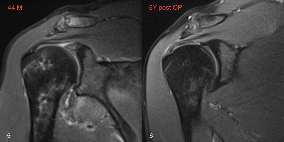 Fall_1.SLRMR.9.19.20.21.22.23.24_Schulterluxation und Verletzung der Rotatorenmanschette