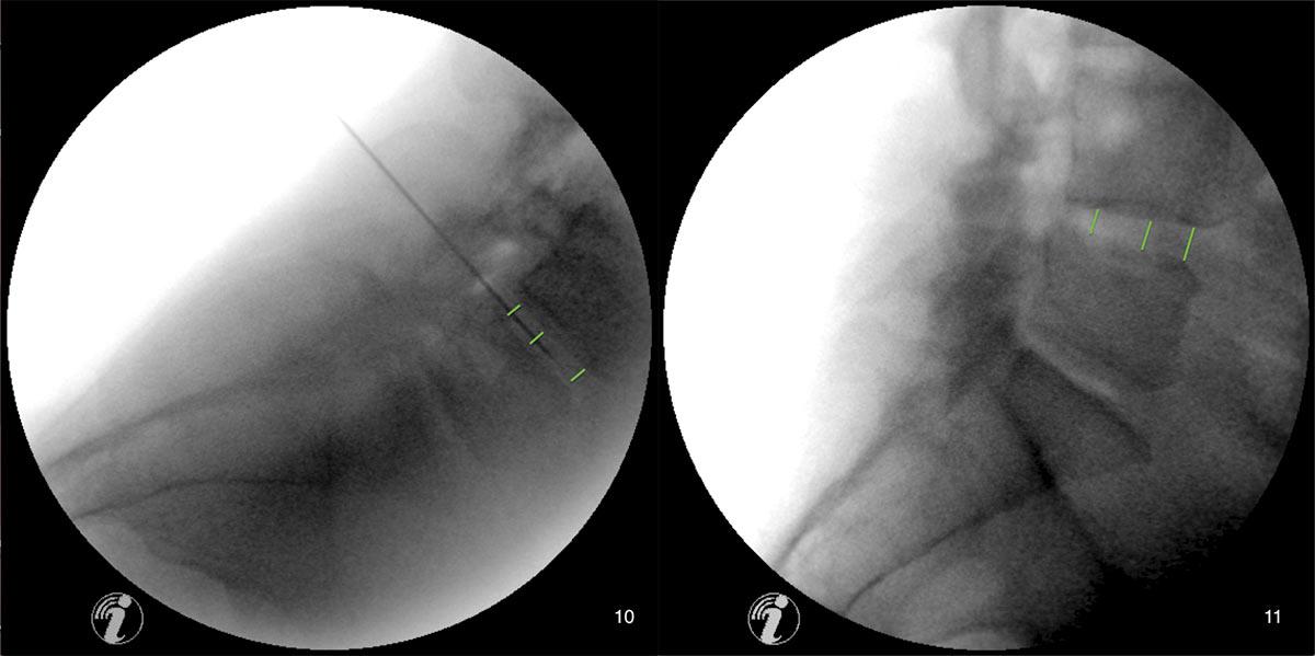 Fall_6.A.DDD.SL.7.19.20.25_Bandscheibendegeneration-und-Sponylolisthesis