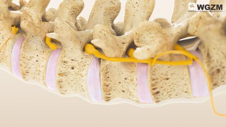 Regenerative Rekonstruktion Der Wirbelsäule Und Der Gelenke Nach Dem MIBRAR® System 3