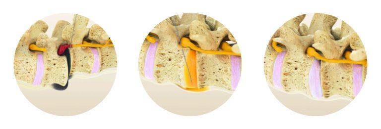 Regenerative Rekonstruktion Der Wirbelsäule Und Der Gelenke Nach Dem MIBRAR® System-7