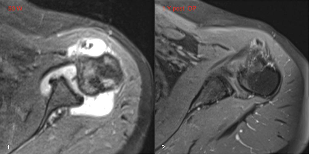 Rheumatoide Arthritis an der Schulter