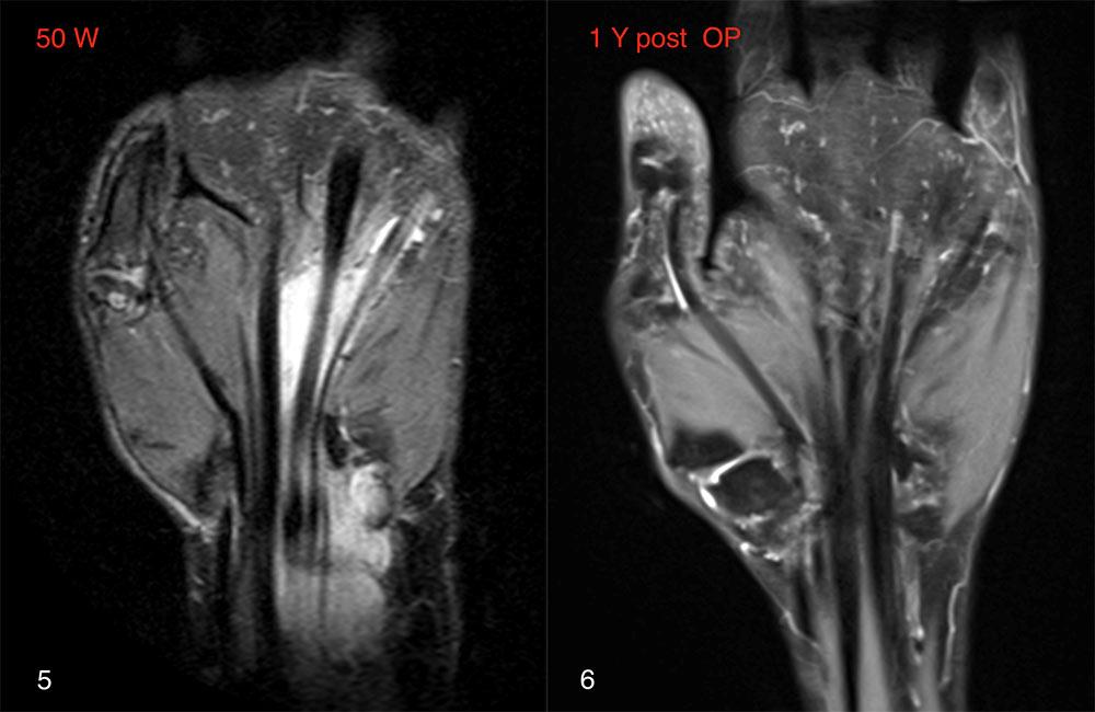 Rheumatoide Arthritis an der rechten Hand